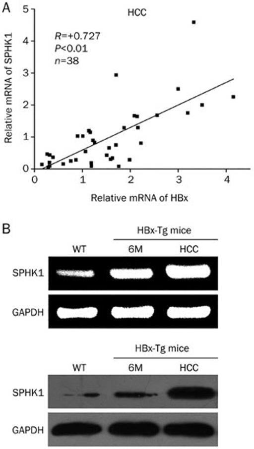 The mRNA levels of HBx are positively associated with those of SPHK1 in clinical HCC tissues. (A) The correlation between HBx mRNA levels and SPHK1 mRNA levels was detected by qRT-PCR in clinical HCC tissues (P<0.01, r=0.727, Pearson's correlation). (B) The expression of SPHK1 at the levels of mRNA and protein was examined using RT-PCR and Western blot analysis in either the liver tissues or the HCC tissues of HBx-Tg mice.