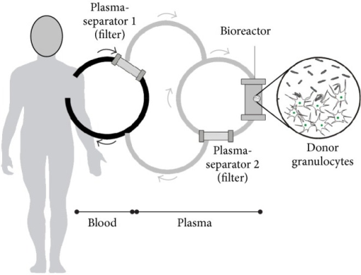 Schematic drawing of the extracorporeal plasma separation and cell perfusion model.
