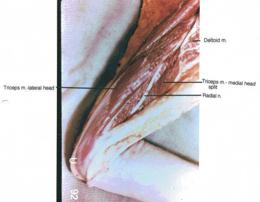 triceps muscle; deltoid muscle; radial nerve