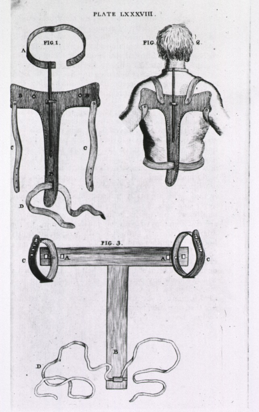 <p>Two types of back brace (support), and half-length illustration of a man wearing a back brace.</p>