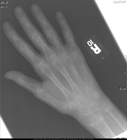 Multiple well circumscribed elongated (flame shaped) cortical lucencies throughout the hand. Nondisplaced fracture at the base of the second proximal phalanx.