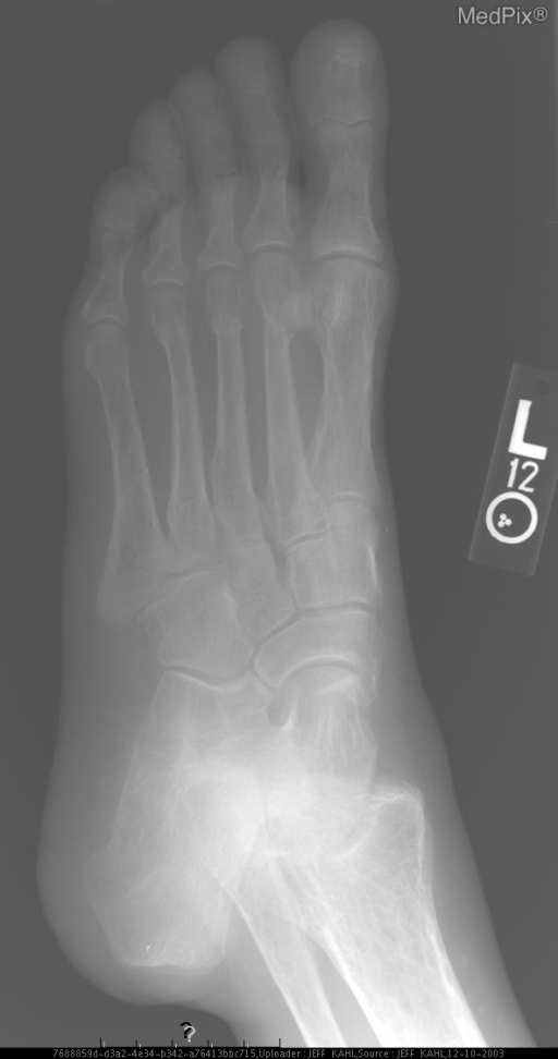 Healed fractures of the second/third metatarsals. Multiple lucencies of hindfoot and distal tibia/fibula.