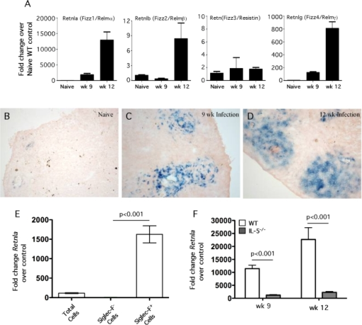 Retnla is localized to granuloma-associated eosinophils in the liver.Control WT C57BL/6 mice (n = 5) were infected with 30–35 S. mansoni cercariae percutaneously. Mice were sacrificed at weeks 9 and 12 post infection and liver RNA specimens were prepared individually for real-time PCR analysis of Retnla, Retnlb, Retn, and Retnlg (A). Gene expression (mean±SEM) is expressed as the fold-increase over naïve WT controls after normalization to HPRT. Livers from naïve Retnla−/− mice (B) and Retnla−/− mice infected with 30–35 cercariae for 9 (C) and 12 wk (D) were snap frozen and embedded in OCT. In situ Retnla expression was evaluated by LacZ reporter activity (blue precipitate) in frozen tissue sections exposed to β-galactosidase substrate, X-gal. Original magnification ×10 (B, C) and ×20 (D). (E) WT C57BL/6 mice were infected with 35 S. mansoni cercariae and on week 9, eosinophils were purified from perfused livers by positive selection using the Siglec-F antibody. The granuloma-associated leukocytes were separated into nonfractionated, Siglec-F− (eosinophil-negative), and Siglec-F+ (eosinophil-positive) fraction, mRNA was isolated, and then analyzed by real-time PCR analysis for Retnla. The data shown are means±SEM (n = 5/group). (F) WT C57BL/6 mice and IL-5−/− mice were infected with 30–35 S. mansoni cercariae percutaneously. Mice were sacrificed at weeks 9 (WT n = 9, IL-5−/− n = 10) and 12 (WT n = 6, IL-5−/− n = 8) post infection and liver RNA specimens were prepared individually for real-time PCR analysis of Retnla. Gene expression (mean±SEM) is expressed as the fold-increase over naïve WT controls after normalization to HPRT. Similar results were obtained in two repeat experiments.