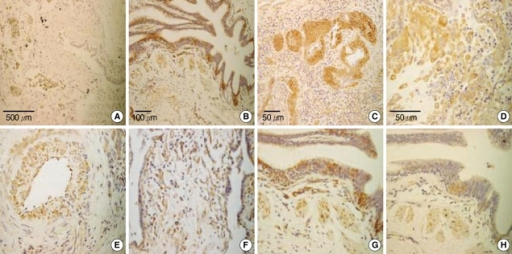 Immunohistochemical analysis of IL-13 and IL-13Rα1/IL-13Rα2 expression in lung tissues from patients with IPF and from controls. IL-13 was only negligibly expressed in controls (A) but was strongly expressed in the smooth muscle (B), bronchial epithelium, especially the hyperplastic regenerating epithelium (C), alveolar macrophages (D), endothelium (E), and interstitum (F) of IPF patients. IL-13Rα1 was strongly expressed by the bronchial epithelium and smooth muscle of IPF patients (G). IL-13Rα2 was weakly expressed in the same regions of IPF patients (H). Magnification: ×20 (A), ×40 (B), ×100 (C, F-H), and ×200 (D, E).