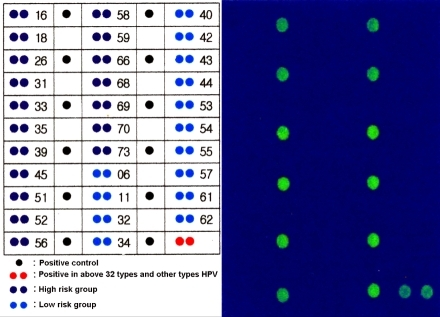 HPV DNA chip microarray format (Left). DNA chip microarray for HPV types show the presence of other type HPV DNA in this case, but not the high and low risk HPV types. (Left: DNA chip microarray format; right: results in this case, other HPV DNA types positive.)