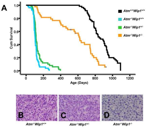 Atm−/−Wip1−/− mice exhibit extended survival and protection from thymic lymphomas(A) Kaplan-Meier survival plot comparing Atm+/+Wip1+/+ (N=55), Atm−/−Wip1+/+ (N=52), Atm−/−Wip1+/− (N=50), and Atm−/−Wip1−/− (N=43) mouse longevity. Atm−/−Wip1−/− mice are largely protected from developing thymic lymphomas and survive much longer than their Atm−/−Wip1+/+ and Atm−/−Wip1+/− counterparts (P = 2.42 × 10−14). (B-D) Representative hematoxylin and eosin stained sections of thymic lymphomas at 200X magnification from Atm−/−Wip1+/+ (B), Atm−/−Wip1+/− (C), and Atm−/−Wip1−/− (D) mice. No differences in histopathology were observed in the thymic lymphomas from Atm−/−Wip1−/− (N=3) mice when compared to Atm−/−Wip1+/+ (N=3) and Atm−/−Wip1+/− (N=3) littermates.
