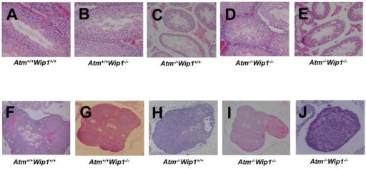 Atm−/−Wip1−/− mice exhibit partial restoration of mature gamete formation(A-E) Representative hematoxylin and eosin (H&E) stained sections of testes from Atm+/+Wip1+/+ (N=4) (A), Atm+/+Wip1−/− (N=4) (B), Atm−/−Wip1+/+ (N=6) (C), and Atm−/−Wip1−/− (N=9) (D & E) mice at 200X magnification. Some testes from Atm−/−Wip1−/− mice show a partial rescue of spermatogenesis similar to that observed in testes from Atm+/+Wip1−/− mice. (F-J) H&E stained sections of ovaries from Atm+/+Wip1+/+ (N=4) (F), Atm+/+Wip1−/− (N=5) (G), Atm−/−Wip1+/+ (N=4) (H), and Atm−/−Wip1−/− (N=3) (I & J) mice at 40X magnification. Some Atm−/−Wip1−/− ovaries show a partial rescue of oogenesis similar to that observed in Atm+/+Wip1−/− ovaries.