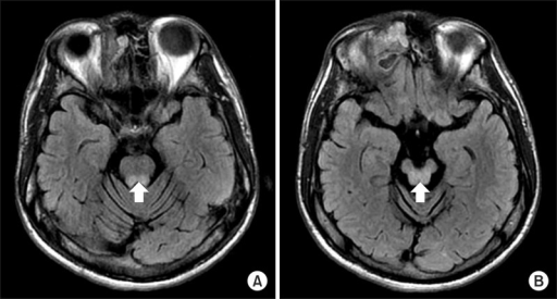 Brain magnetic resonance imaging on fluid attenuated inversion recovery imaging shows high signal intensity (arrow) in the pons (A) and the midbrain (B).