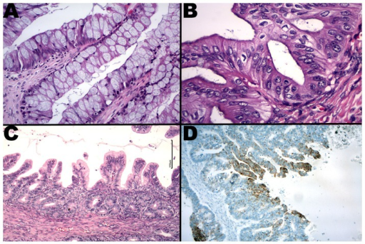Mucinous carcinomas with intestinal (A), Mullerian (B) and gastric (C) phenotypes. Focal cytokeratin 7 expression in a metastatic mucinous carcinoma is shown.