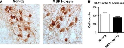 ChAT immunoreactivity in the nucleus ambiguus of nontransgenic and MBP1‐α‐syn tg mice (A). Serial vibratome sections from wild‐type (n = 6) and MBP1‐α‐syn tg mice (n = 6) were immunolabeled with the rabbit polyclonal antibody against ChAT and analyzed by the dissector method with the MBL serology system. Discrete groups of ChAT‐positive cells were identified, in both groups, compared to wild type the MBP1‐α‐syn tg mice showed a nonsignificant trend (B). Bar = 25 µm.