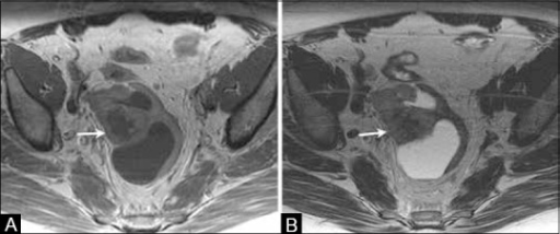 A 69-year-old female with history of treated endometrial cancer surgically treated with hysterectomy. (A) Axial T1W and (B) T2W MR images show a complex cystic solid lesion in the pelvic region suggestive of recurrent disease