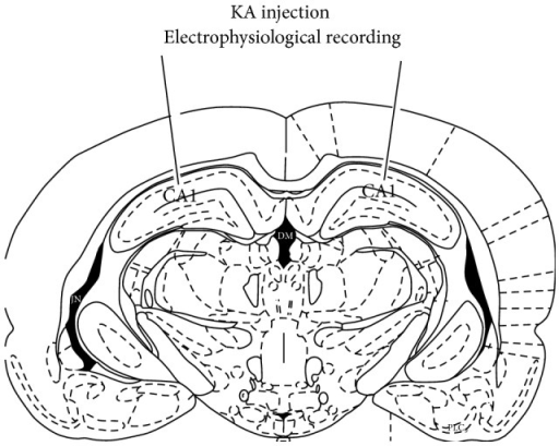 A schematic indicates the site for KA injection and electrophysiological recording in CA1 area.