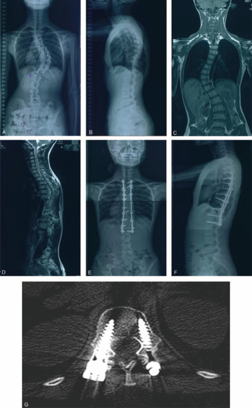 A female patient who received the 3D printing technology before the surgery. Preoperative radiographs anteroposterior (A) and lateral (B) views of a 14-year-old Lenke 1 AIS patient with a major Cobb angle of 55° and secondary Cobb angle of 38°, and the 3D prototyping technology was used before the surgery. (C) and (D) were the coronal and sagittal film of preoperative magnetic resonance imaging, showing no abnormality in spinal cord. Postoperative radiographs were shown in (E) and (F), showing the major Cobb angle and secondary Cobb angle after operation was 18° and 11°, respectively, and the correction rate was 67.27% and 71.05%, respectively. Postoperative CT scan (G) showed the accurate position of pedicle screws. 3D = 3-dimensional, AIS = adolescent idiopathic scoliosis, CT = computed tomography.