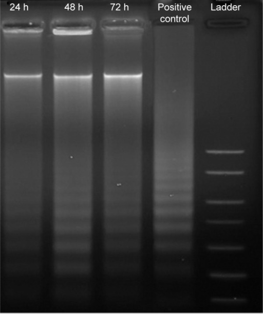 Agarose gel image of ladder formation.Notes: MCF-7 cells were exposed to benzyltin compound C1 at IC50 for 24, 48, and 72 hours. DNA was extracted and fragmentation in DNA was assessed using electrophoresis and 1.5% agarose gel. The occurrence of ladders for treated MCF-7 cells indicates apoptosis.Abbreviations: C1, compound 1 [N-(3,5-dichloro-2-oxidobenzylidene)-4-chloro-benzyhydrazidato](o-methylbenzyl)aquatin(IV) chloride; h, hours; IC50, half maximal inhibitory concentration.