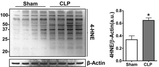 Sepsis increased renal 4-HNE protein adduction. Representative 4-HNE western blot from mice subjected to CLP (sepsis) or sham surgery. Actin was used as a loading control. Densitometry showing band intensity 4-HNE/actin. Mice subjected to CLP (18 hr) showed increased 4-HNE compared to sham animals. *P<0.05 vs. sham; n = 4/group.