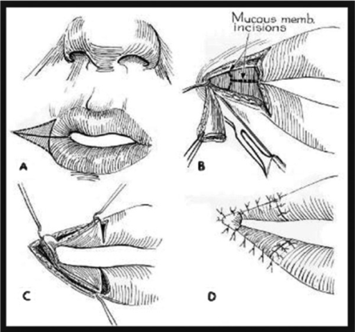 Y-V mucosal advancement flaps originally described by Dieffenbach, with later modifications by Converse.