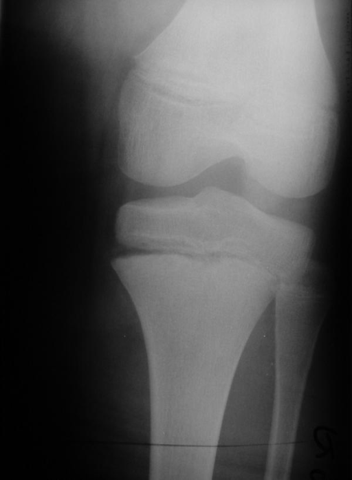 The initial radiograph (anterio-posterior view) reveals an opened physeal plate (medial) and a small metaphyseal fracture.