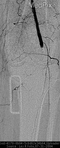 Angiogram demostrates occlusion of the popliteal artery