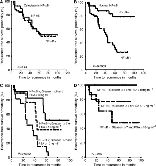 Upper panels, Kaplan–Meier survival curves for cytoplasmic and nuclear NF-κB expression in prostate adenocarcinomas. (A) No association between NF-κB cytoplasmic expression and biochemical disease recurrence was detected (P=0.74). (B) Nuclear expression of NF-κB was associated to the chance of biochemical disease-free survival. Patients with nuclear NF-κB had a higher risk of biochemical disease recurrence compared with those whose primary tumours did not have nuclear NF-κB (P=0.0009). Lower panels, Kaplan–Meier survival curves for NF-κB nuclear expression combined with presurgical serum prostate specific antigen (PSA) levels and Gleason score. (C) Patients with positive nuclear NF-κB expression and both (PSA⩾10 ng ml−1 and gleason ⩾7) adverse prognostic factors had a greater chance of biochemical disease recurrence than those who presented one (PSA⩾10 ng ml−1 or gleason ⩾7) or no (PSA⩽10 ng ml−1 and gleason⩽6) adverse independent prognostic factors (P=0.0032). (D) Patients with negative nuclear NF-κB expression, PSA<10 ng ml−1 and Gleason⩽6 presented had a better prognosis compared to patients with negative nuclear NF-κB expression and one (PSA⩾10 ng ml−1 or gleason⩾7) or both (PSA⩾10 ng ml−1 and gleason⩾7) adverse independent prognostic factors (P=0.046).