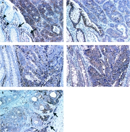 Dysadherin and E-cadherin expression in colorectal cancers demonstrated by immunohistochemistry. (A)–(D) are the adjacent sections of the same cases. (A) Dysadherin expression was observed in lymphocytes (arrowheads) and endothelial cells (arrows). Membranous dysadherin staining was localised at intercellular borders of cancer cells and was heterogeneous in tumour nests. No immunoreactivity was seen in normal colorectal epithelial cells (magnification × 200). (B) E-cadherin expression was observed at the cell–cell borders in normal epithelial cells, and was reduced in the majority of cancer cells in this section (magnification × 200). (C) Tumour cells were positively stained for dysadherin (magnification × 200). (D) E-cadherin expression was not reduced in tumour cells where dysadherin was expressed (magnification × 200). (E) Preferential dysadherin expression was observed in infiltrative tumour cells (arrow) in some cases (magnification × 200).