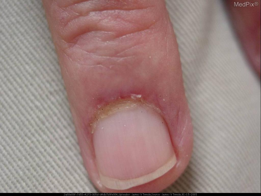 Scalp: erythema with scale. Face: violaceous macules resembling early heliotrope; central facial erythema. Trunk & extremities: violaceous, indurated plaques. Hands: firm erythematous papules over joints. Fingernails: ragged cuticles and tortuous dilated capillary loops. Neuro: strength 4/5 in upper extremity/shoulder girdle musculature.