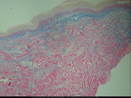 Histopathology: The biopsy shows a vacuolar interface dermatitis with increased interstitial mucin.