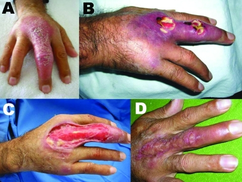 Patient 8. A) Nonulcerative edematous lesion on the right middle finger as first seen; B) ulcerated lesions on the right middle finger ≈4 weeks later; C) extensive debridement, 5.5 weeks after first seen; D) cured lesion 5 months after first seen, 1 month after autologous skin graft.