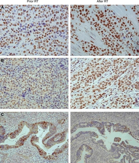 (A–C) Positive immunohistochemical staining of Ku70 (A) in poorly differentiated squamous cell carcinoma, Ku86 (B) in glassy cell adenocarcinoma and p21 (C) in moderately differentiated adenocarcinoma of the cervix. Immunoreactivity is noted in nuclei of the tumour cells. After radiotherapy an increased frequency of Ku70- and Ku86-positive tumour cells are seen parallel to a decrease in p21 positivity.