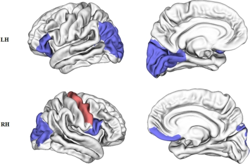 Cortical regions with altered topological properties in early blind subjects (p<0.05).Blue: regions with decreased Ki and Ei_glob and increased Li in the early blind; Red: regions with increased Ki and Ei_glob in the early blind; Top: left hemisphere (LH); Bottom: right hemisphere (RH).