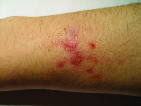 Mycobacterium marinum infection   juhanip   Flickr