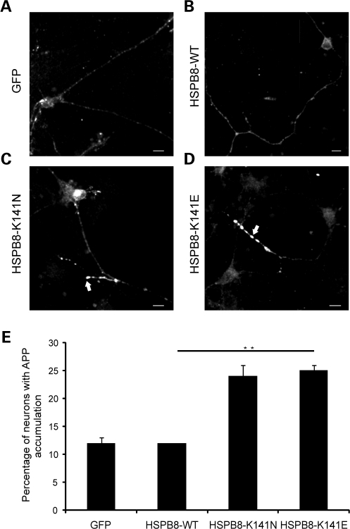 Motor neurons expressing mutant HSPB8 show enhanced neuritic APP accumulation. Rat motor neurons were transduced with pLenti-GFP, pLenti-WT-HSPB8-GFP or mutant pLenti-K141N/K141E-HSPB8-GFP constructs at DIV3 and immunostained using amyloid precursor protein (APP) antibody at DIV7. Motor neuron neurites expressing GFP (A) or HSPB8-WT (B) mainly show a faint and punctate appearance of APP in the neurites, similar to non-transduced neurites, while neurites of motor neuron expressing HSPB8-K141N (C) or HSPB8-K141E (D) accumulate more APP (arrow). The incidence of APP accumulation was quantified by counting the proportion of cells with strong neuritic APP accumulation (E). **P-value < 0.01. Scale bar = 10 µm.