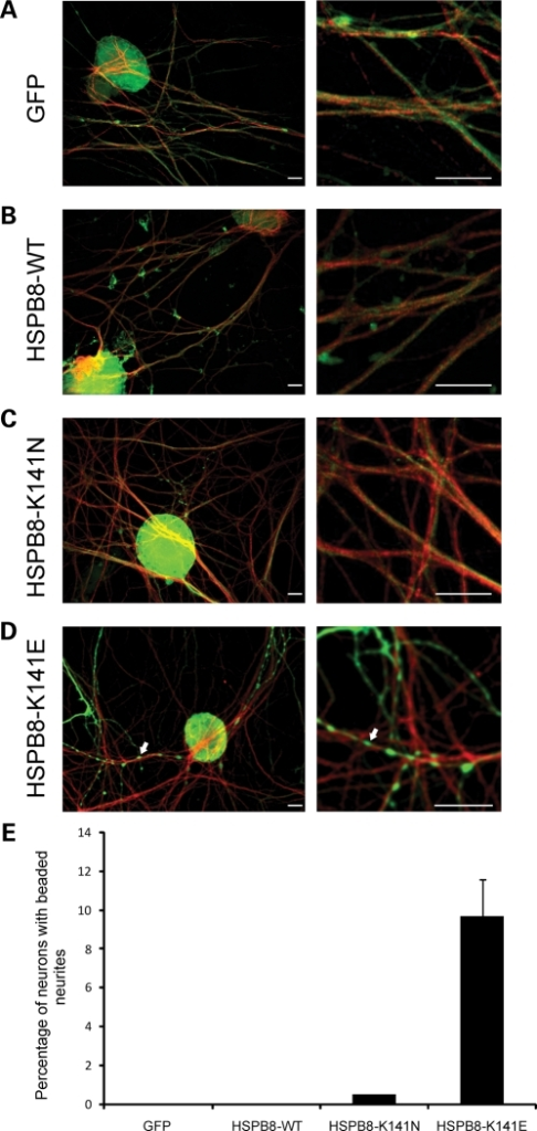 Mutant HSPB8 induces neurite degeneration in a small proportion of primary sensory neurons. Mouse sensory neurons were transduced with pLenti-GFP, pLenti-WT-HSPB8-GFP or mutant pLenti-K141N/K141E-HSPB8-GFP constructs at DIV6 and immunostained at DIV10 using β-III tubulin antibody. Merged confocal micrographs of GFP (green) and β-III tubulin (red) are shown (A–D). No signs of neurite degeneration were found in sensory neurons expressing GFP (A), HSPB8-WT (B) and HSPB8-K141N (C), while the neurites of some cells expressing HSPB8-K141E were clearly beaded (arrow) (D). Scale bar = 10 µm. The incidence of neurite degeneration was quantified by counting the proportion of neurons with beaded neurites (E). **P-value < 0.01.