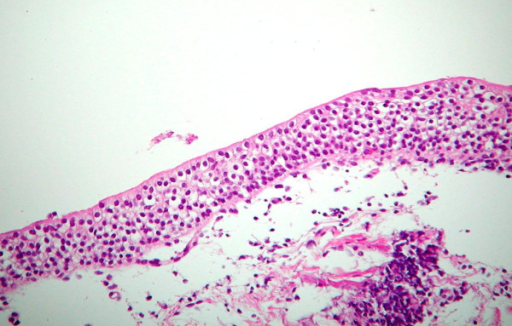 Normal urothelium.