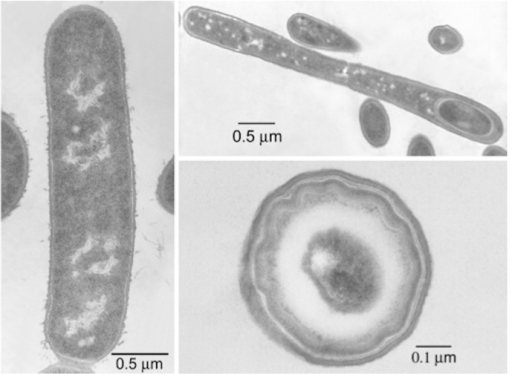 Thin section electron micrographs of B. coagulans strain 36D1. Left: vegetative cell. Upper right: sporulating cell. Lower right: mature spore.