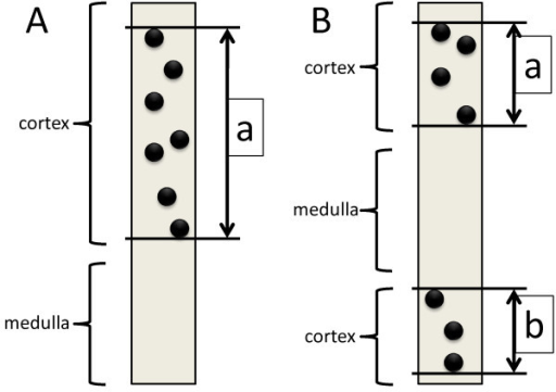 Definition of the length of the cortex in this study. (A) The length of cortex is measured from the outermost glomerulus to the innermost glomerulus. (B) When the medulla is sandwiched between cortices, the total of two lengths between the outermost glomerulus to the innermost glomerulus is considered the length of the cortex in the section.