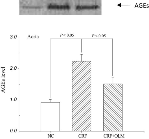 Representative Western blot and the corresponding level of advanced glycation end products (AGEs) in the aortas of rats (n = 5) analyzed by densitometry. Lane 1: NC; lane 2: CRF; lane 3: CRF + OLM. All data were normalized to the NC. NC, normal controls; CRF, chronic renal failure; OLM, olmesartan.