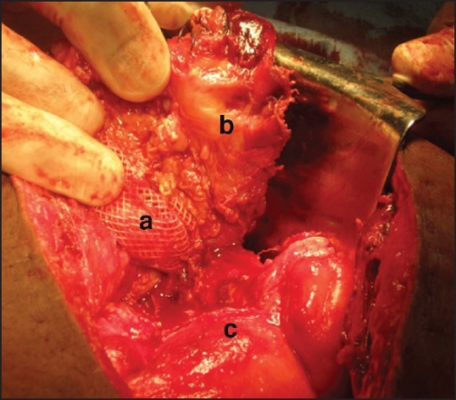 (a) Cranial view of mesh (b) surrounded with pseudotumor, (c) just before surgical removal from bladder wall