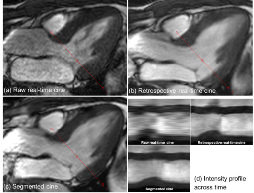 Retrospective real-time cine with improved temporal resolution can enhance the visualization of valve. In this 3CH slice, the mitral valve is well captured in both real-time reconstruction (b) and segmented cine (c). The image quality of raw real-time cine (a) is much worse than the retrospective reconstruction. (d) shows the intensity profiles across time for the retrospective real-time and segmented cine. The intensity profile of raw real-time cine is generated by interpolating all images acquired in one cardiac cycle. The trigger time of raw real-time cine is 342 ms and for retro-gated reconstruction (b and c), it is the 7th cardiac phase out of 30 with the approximated trigger time of 395 ms.