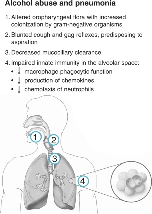Schematic illustration of the mechanisms by which alcohol abuse increases the risk of pneumonia. In addition to altering the normal microbes from the upper part of the throat (i.e., oropharyngeal flora), alcohol abuse impairs both physical barriers to bacterial entry into the lower airways (by diminishing cough and gag reflexes as well as mucus-facilitated [i.e., mucociliary] clearance from the large airways in the chest) and innate immune barriers to airway pathogens. For example, alcohol abuse impairs pathogen ingestion (i.e., phagocytosis) by white blood cells in the air sacs of the lungs (i.e., alveolar macrophages) and other infection-fighting white blood cells (i.e., neutrophils).NOTE: Aspiration: the entry of secretions or foreign material into the trachea and lungs. Chemokines: small proteins involved in immune function. Chemotaxis: directed movement.
