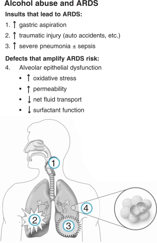 Schematic illustration of the mechanisms by which alcohol abuse increases the risk of the acute respiratory distress syndrome (ARDS). In addition to increasing the risk of developing acute illnesses that lead to ARDS, such as the entry of stomach secretions into the trachea and lungs (i.e., gastric aspiration), trauma, and severe pneumonia, alcohol abuse impairs the function of the lining of the lung's air sacs (i.e., alveolar epithelium), thereby rendering the lung susceptible to injury from fluid accumulation (i.e., ARDS) that might not otherwise occur in a healthy person who experiences the same initial injury or infection.NOTE: Oxidative stress: damaging chemical imbalance in the cell. Surfactant: the substance that serves to maintain the stability of lung tissue by reducing the surface tension of fluids that coat the lung.