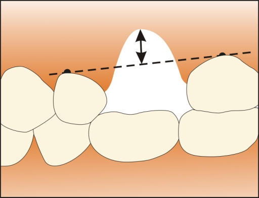 Alveolar ridge vertical position in non aesthetic zone: | Open-i
