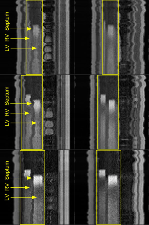Reformatted perfusion series (apical, medial and basal slices) before (left) and after motion correction (right); the regions of interest (yellow rectangles) include the right ventricle (RV), left ventricle (LV) and interventricular septum; the magnitude of motion in the series before correction can be observed through the shifting position of the septum.