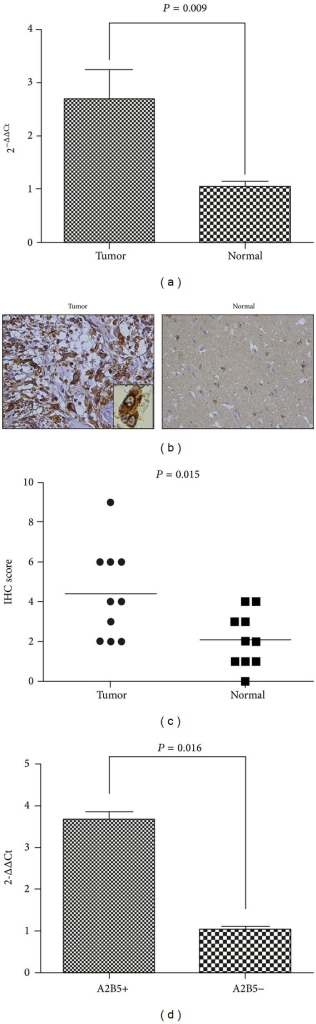 HEATR1 was overexpressed in GBM and in A2B5+GSCs. (a) qRT-PCR was performed to analyze the differential expression between GBM tissues (n = 22) and controlled brain tissues (n = 8). (b)-(c) IHC was performed in FFPE tissue sections of 10 primary GBM tissues (left, ×400) and 10 normal brain tissues (right, ×400). GBM tissues had higher staining score of HEATR1 protein than normal brain tissues (P = 0.015). (d) qRT-PCR was performed to analyze the differential expression between A2B5+U87 cells and A2B5−U87 cells (P = 0.0016).