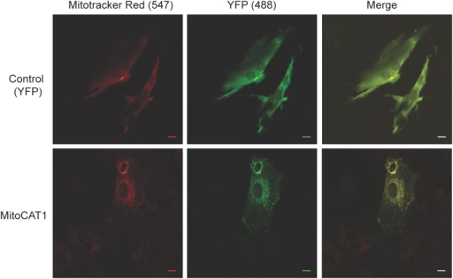 Representative fluorescent confocal images of cardiomyocytes (NVCMs) transfected with control YFP-MTS AAV6 (top panels) or CAT1-YFP-MTS AAV6 (lower panels) incubated with Mitotracker Red.Images confirm mitochondrial targeting in CAT1-YFP-MTS AAV6 transfected cardiomyocytes. Scale bar = 10 µm.