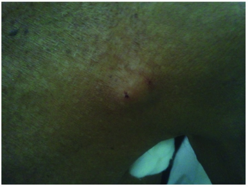 Swelling measuring 2 × 2 cm over the left shoulder. Swelling was hard and non-tender.