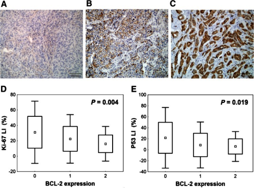 Representative images of BCL-2 immunohistochemical staining in breast cancer tissue and correlation between BCL-2 immunoexpression and other biological features studied. a Negative BCL-2 staining (class 0—no BCL-2 expression). b Heterogeneous BCL-2 immunostaining within tumour area (class 1—BCL-2 expression). c Intense BCL-2 staining in all tumour cells (class 2—BCL-2 overexpression), ×200 magnification. BCL-2 overexpression is correlated with d low proliferation rate assessed by Ki-67 labelling index (Ki-67LI), e low P53 level expressed as P53 labelling index (P53LI) (Kruskal–Wallis test)