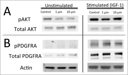 BMS-754807 decreases AKT phosphorylation in DIPG cell-lines cultured in serum-free media.Western blot for (A) pAKT (Ser473, 60 kDa) and total AKT (60 kDa), (B) pPDGFRA (195 kDa) and total PDGFRA (195 kDa) after four hours of treatment with BMS-754807 with or without IGF ligand stimulation for 15 minutes in DIPG cell lines induced by PDGF-B, H3.3K27M, and p53 loss. A representative blot from three independent experiments is shown. Actin (43 kDa) is shown as a loading control.