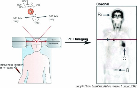 Principles of PET. 18F radiotracer is intravenously injected. The tracer decays by emitting a positron, which annihilates with a nearby electron to produce two γ-rays. The PET scanner can detect the coincident γ-rays, and images can be reconstructed showing the location(s) and concentration of the tracer of interest. Sectional PET image is shown: normal uptake in brain (Br) and myocardium (C), and renal excretion into the urinary bladder (B) are visible. Also seen is a tumour (T) in the lungs that takes up more 18F radiotracer than the surrounding tissues. Adapted with permission from Macmillan Publishers Ltd: Nature Reviews Cancer, Gambhir, copyright 2002[5].