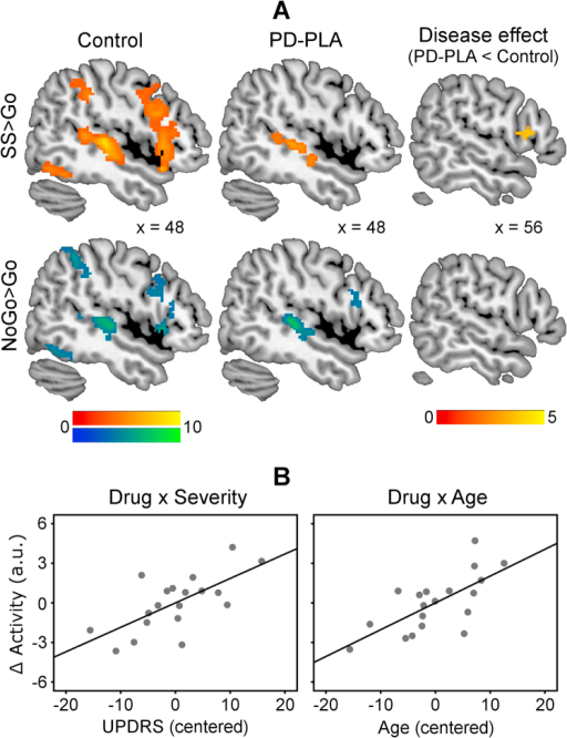 (A) Control subjects showed greater stop-related (stop-signal [SS] > Go, warm colors) and NoGo-related activations (NoGo > Go, cool colors) in the right inferior frontal gyrus (RIFG). The stop-related RIFG activation was significantly weaker in Parkinson's disease-placebo (PD-PLA) than in control subjects (disease effect, p < .05 small-volume corrected). Color scales indicate t values. Coordinates are in Montreal Neurological Institute space. (B) Atomoxetine selectively enhanced the stop-related RIFG activation in more advanced disease (drug × severity) and in older patients (drug × age). The atomoxetine-induced change of RIFG activity (∆Activity) was positively correlated with Unified Parkinson's Disease Rating Scale (UPDRS) and age (mean-corrected data).