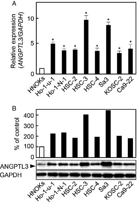 Evaluation of ANGPTL3 expression in OSCC-derived cell lines. (A) Quantification of ANGPTL3 mRNA expression in OSCC-derived cell lines by qRT-PCR analysis. Significant (*P < 0.05, Mann–Whitney U-test) upregulation of ANGPTL3 mRNA is seen in seven OSCC-derived cell lines compared with the HNOKs. Data are expressed as the mean ± SEM of triplicate results. (B) Immunoblotting analysis of ANGPTL3 protein in the OSCC-derived cell lines and HNOKs. ANGPTL3 protein expression is upregulated in the OSCC-derived cell lines compared with the HNOKs. Densitometric ANGPTL3 protein data are normalized to GAPDH protein levels. The values are expressed as a percentage of the HNOKs (P < 0.05, Mann–Whitney U-test).